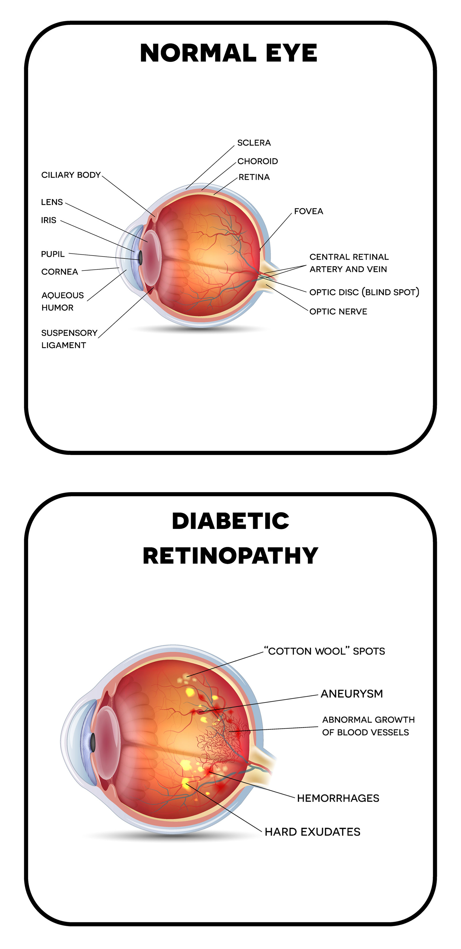 Normal-eye and Diabetic Retinopathy